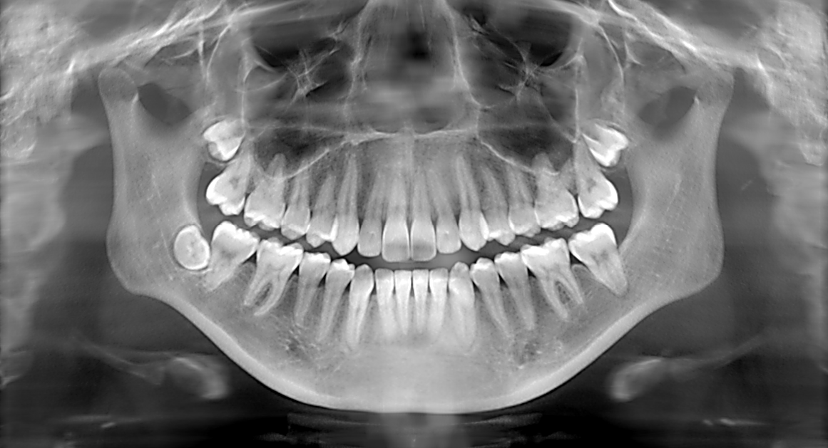 A typical dental x-ray image. Smile!