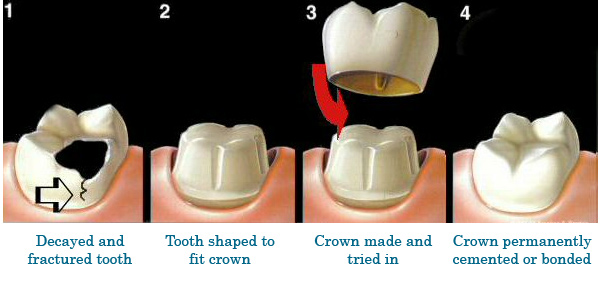 Figure 1. The procedure for a dental crown